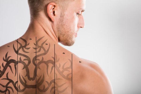 remocao-de-tatuagem-conheca-as-tecnicas-e-possibilidades.jpeg