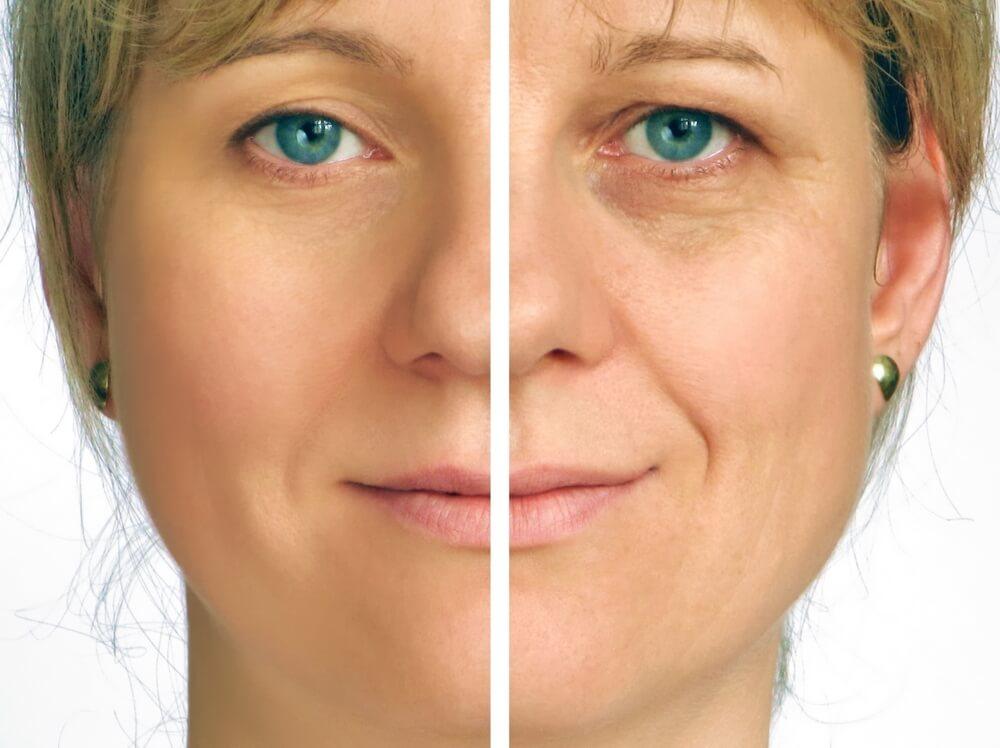 41326-os-beneficios-do-botox-no-tratamento-contra-rugas-de-expressao